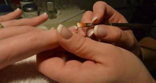 Unghie, aumentano le visite dermatologiche