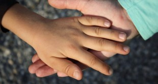 Trapianto di entrambe le mani a un bambino di otto anni