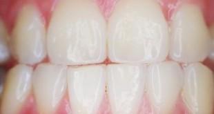 Denti nuovi antibatterici
