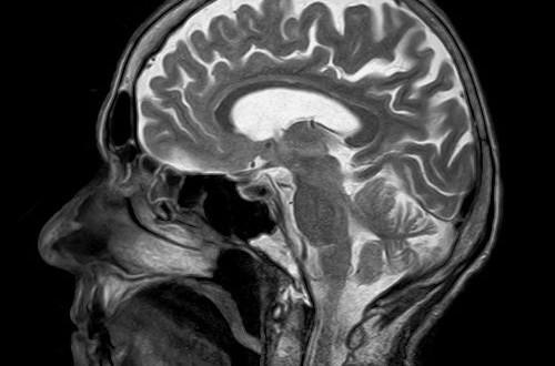Malattie neurologiche e diagnosi precoce