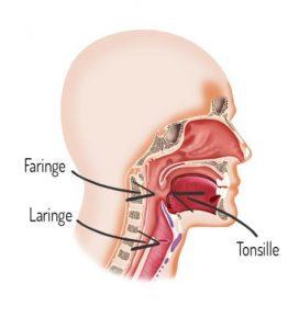 Faringiti, laringiti, tonsilliti: quando si soffre di mal di gola