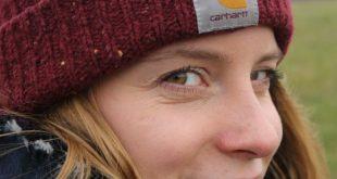 Pelle disidratata a causa del freddo? Curiamola, naturalmente