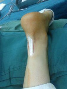 Tendini e legamenti lesionati: ecco la protesi che li rigenera