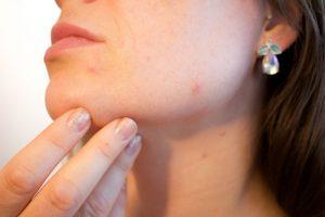 Malattie della pelle diffusissime: ne soffre un quarto degli europei