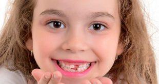 Bocca sana: prima visita dallo specialista tra i 4 e i 7 anni