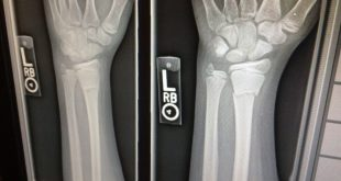 Allarme fratture: bisogna muovere contro la fragilità ossea
