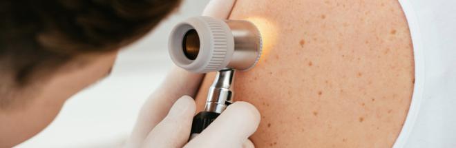 Prevenire e guarire il melanoma: si muore sempre meno