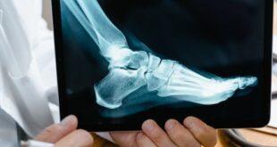 Piede diabetico: il 15% dei diabetici va incontro a ulcerazione del piede