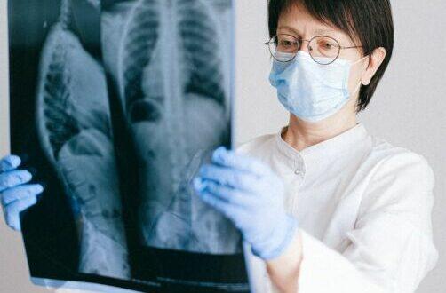 Covid e danni renali: l'impatta dell'infezione sui malati e popolazione sana